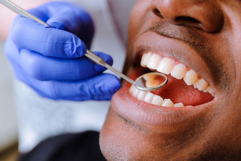 dental bonding patient