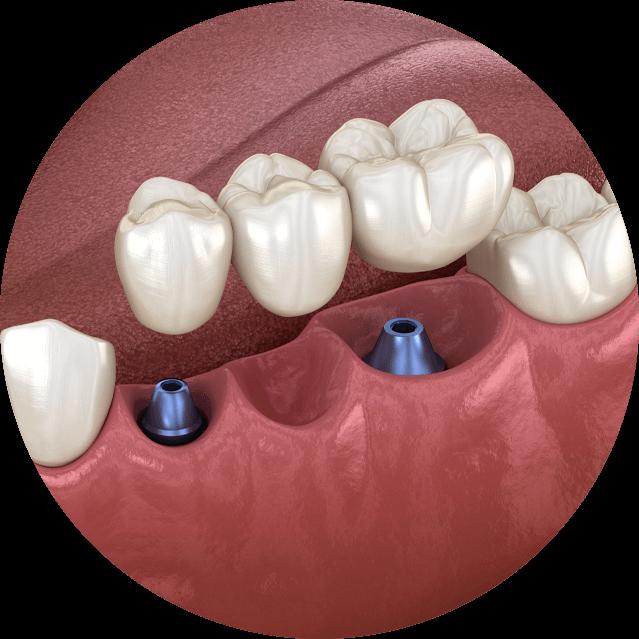 dental implant bridge model