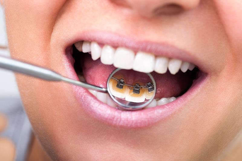 dental patient with lingual braces