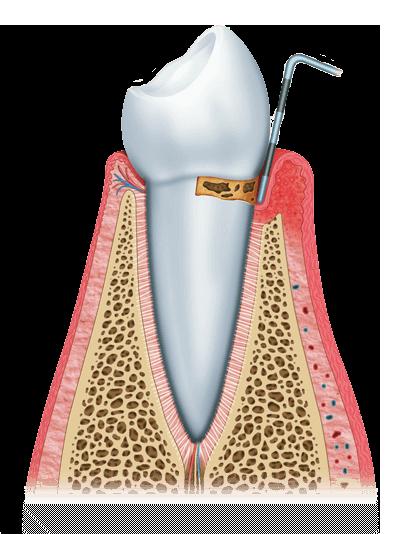 gum disease graphic stage