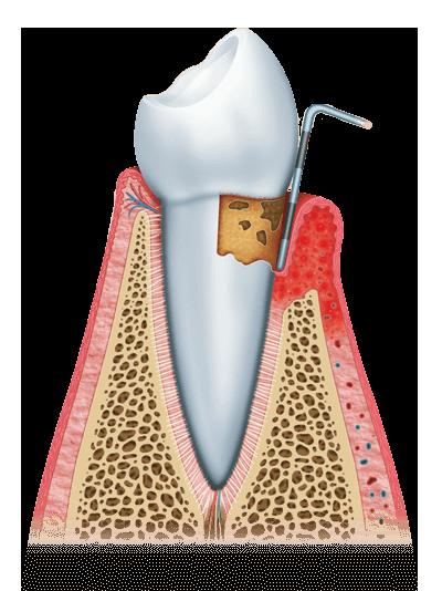 gum disease graphic stage 2